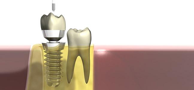 Implantat_Zahnersatz_web